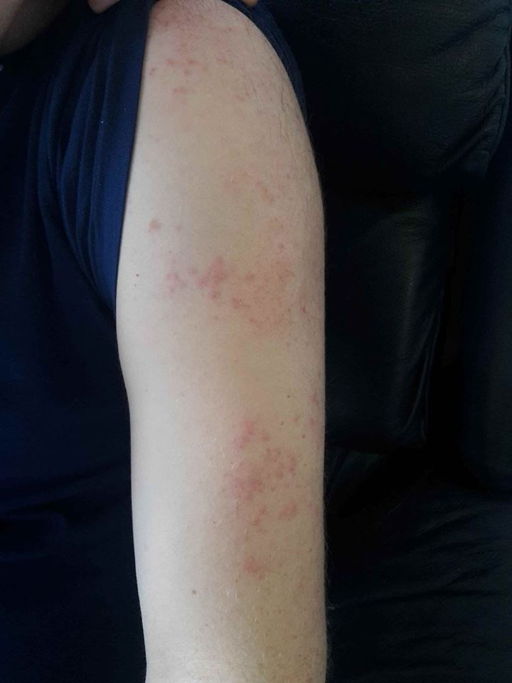 Lemtrada rash arm